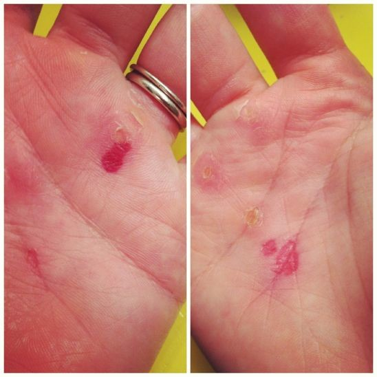 Rebekah hands crossfit